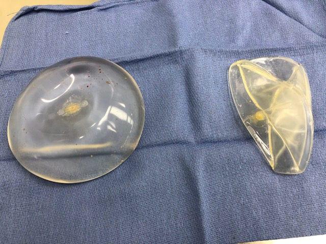 Saline: right implant failed
