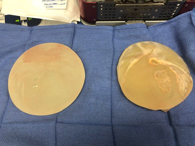 Textured breast implants removed from a patient